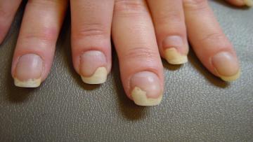 Грибок ногтя, как избавиться?
