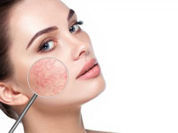 Как правильно ухаживать за чувствительной кожей?