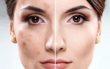 Как убрать пигментные пятна на лице?