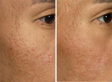 Выравнивание рельефа кожи
